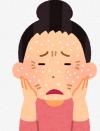 乾燥肌の女性.png